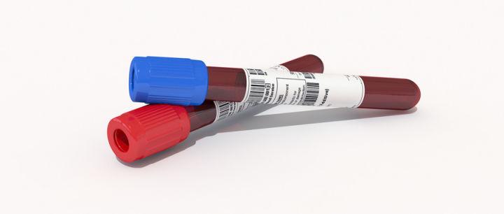 肝功检查时,腺苷脱氨酶高是什么原因?